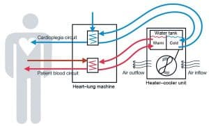 Heater-Cooler Lawsuit Diagram